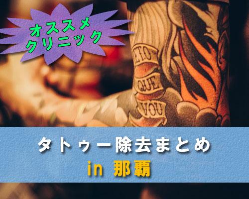 【最新】沖縄県那覇市でタトゥー除去が安くて痛くないクリニックまとめ