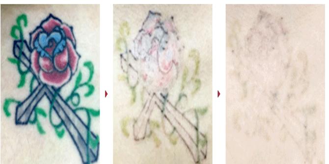 タトゥー除去症例