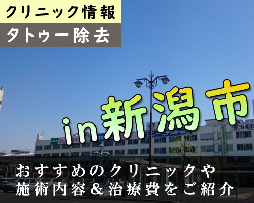 【最新】新潟県新潟市でタトゥー除去できる安くて痛くないクリニックまとめ
